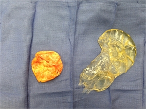 picture of ruptured silicone breast implant