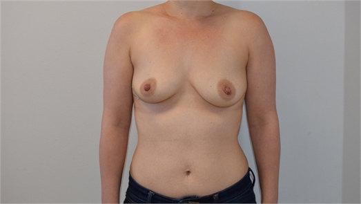 Direct To Implant Breast Reconstruction Before