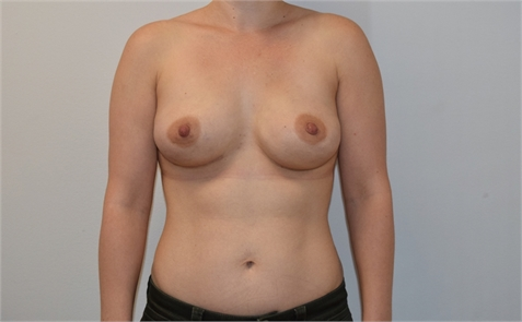 Direct To Implant Breast Reconstruction After