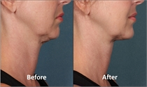 Image related to Los Angeles and Sherman Oaks Kybella Treatments