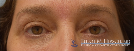 Eyelid botox treatment After