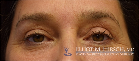 Eyelid botox treatment Before