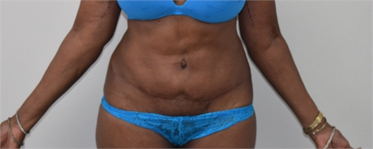 Abdominoplasty Before and After picture Los Angeles Before