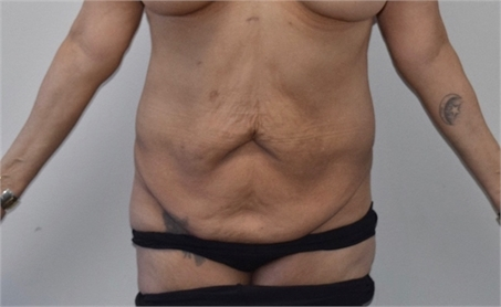 Abdominoplasty Before and After picture Los Angeles After