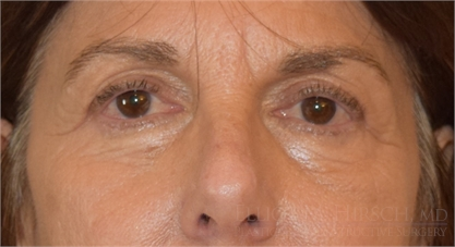 Blepharoplasty Upper Eyelid After
