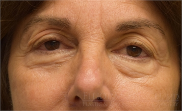 Blepharoplasty Upper Eyelid Before