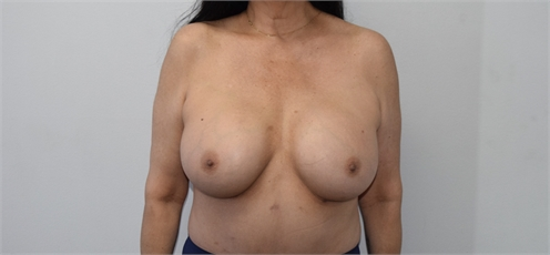 Breast Augmentation Before and After Los Angeles After