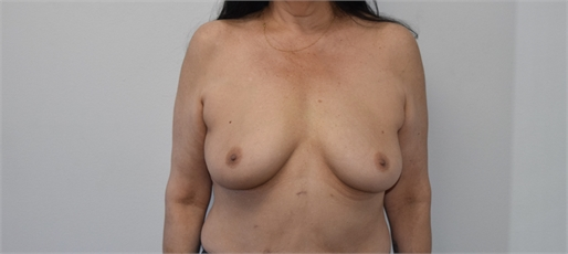 Breast Augmentation Before and After Los Angeles Before