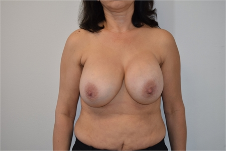 Breast Implant Revision Before