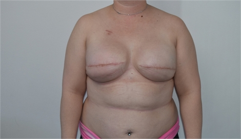 Two Stage Breast Reconstruction After