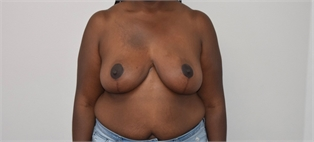 Breast Reduction Before and After Los Angeles After