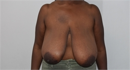 Breast Reduction Before and After Los Angeles Before