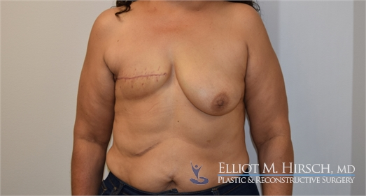 Two Stage Breast Reconstruction Before
