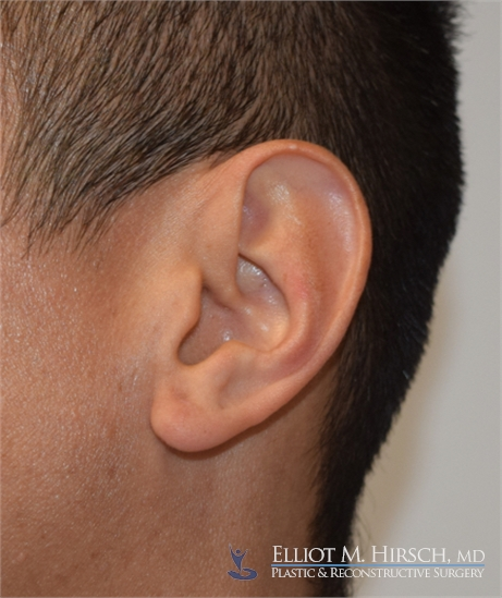 Split Earlobe Repair After