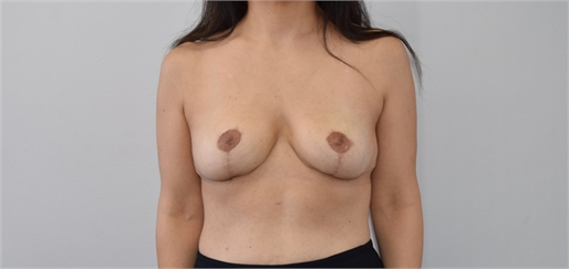 explant and mastopexy After