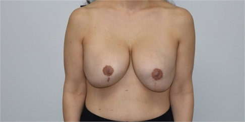explant and mastopexy Before