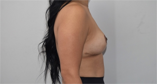 explant mastopexy After