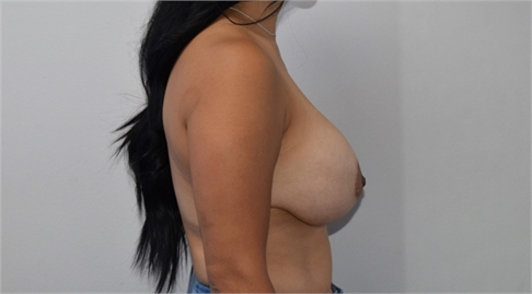 explant mastopexy Before
