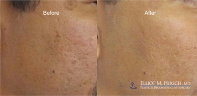 Los Angeles Microneedling Before and After picture