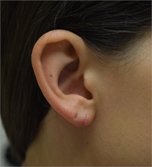 Image related to Los Angeles Split Earlobe Repair